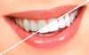Teeth Whitening/歯のホワイトニング
