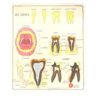 ヴィンテージ  デンタル ポスター 歯科 アート フランス