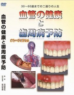 メンテナンス受診啓発用DVD(血管の健康と歯周病予防)