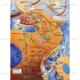脳卒中のステージ1-3(Sサイズ)