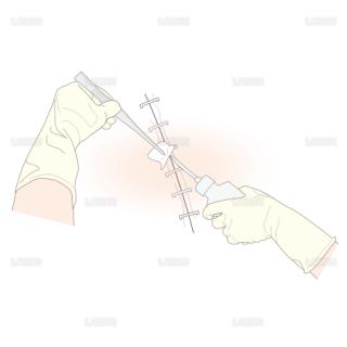 ドレッシングの方法/手術創を線上する (Sサイズ)