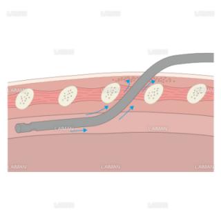 胸腔ドレナージ/皮下気腫 (Mサイズ)