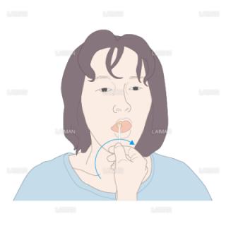 舌苔の除去(Mサイズ)