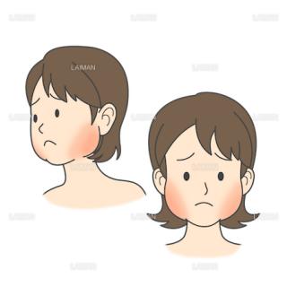 患者イラスト おたふく風邪(流行性耳下腺炎)(Mサイズ)