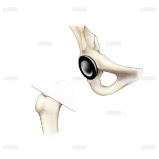 大腿骨全置換術03